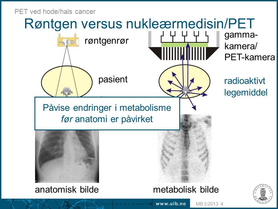 Røntgen versus nukleærmedisin/PET
