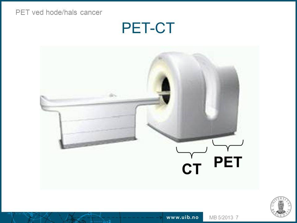 PET-CT PET CT PET ved hode/hals cancer