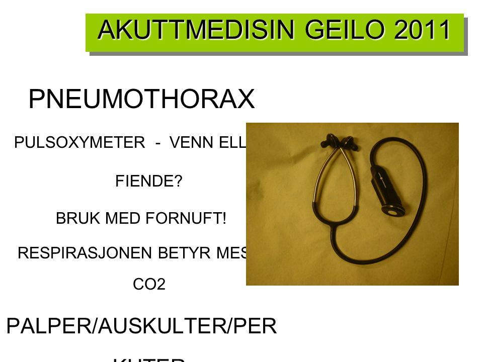 AKUTTMEDISIN GEILO 2011 PNEUMOTHORAX PALPER/AUSKULTER/PERKUTER