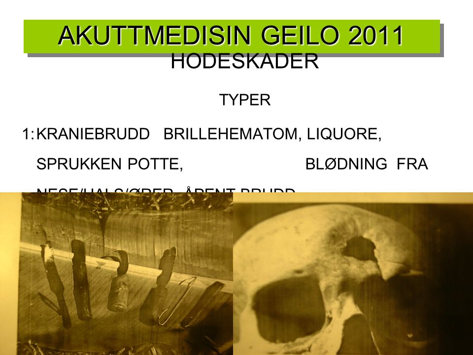 AKUTTMEDISIN GEILO 2011 HODESKADER TYPER