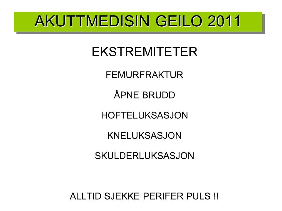 AKUTTMEDISIN GEILO 2011 EKSTREMITETER FEMURFRAKTUR ÅPNE BRUDD
