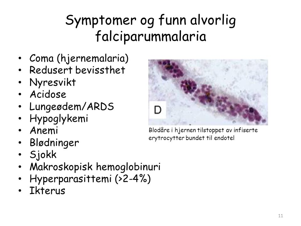 Symptomer og funn alvorlig falciparummalaria