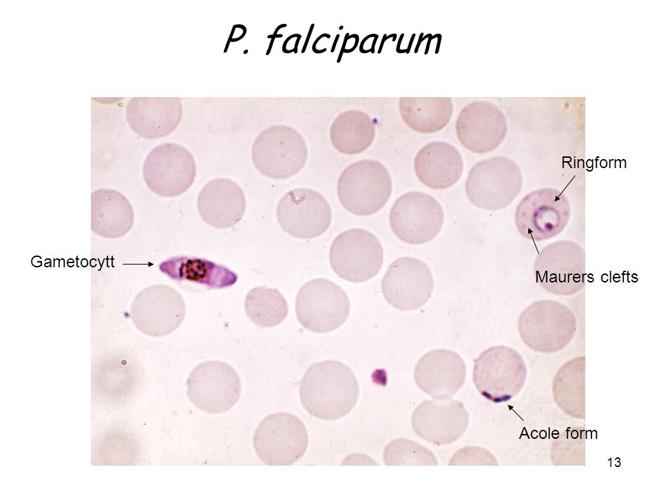 P. falciparum Ringform Gametocytt Maurers clefts Acole form