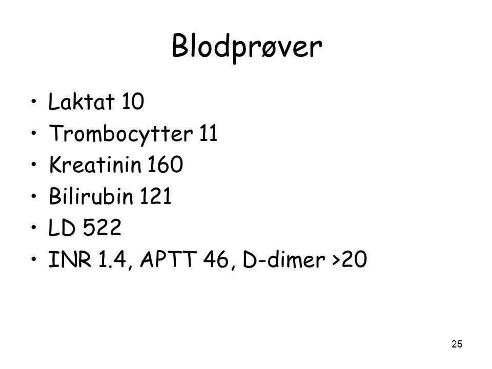 Blodprøver Laktat 10 Trombocytter 11 Kreatinin 160 Bilirubin 121