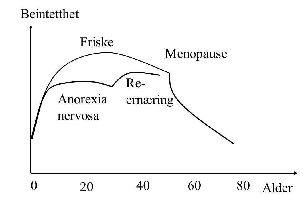Beintetthet Friske Menopause Re- ernæring Anorexia nervosa 20 40 60 80 Alder