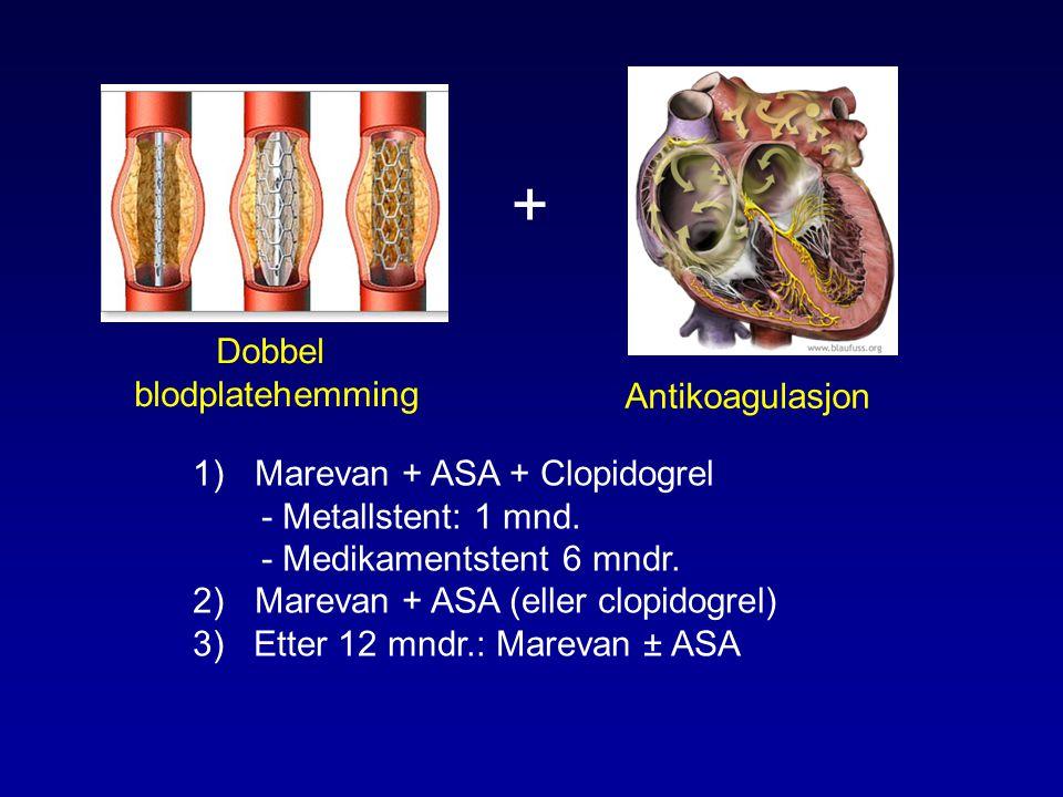 + Dobbel blodplatehemming Antikoagulasjon Marevan + ASA + Clopidogrel