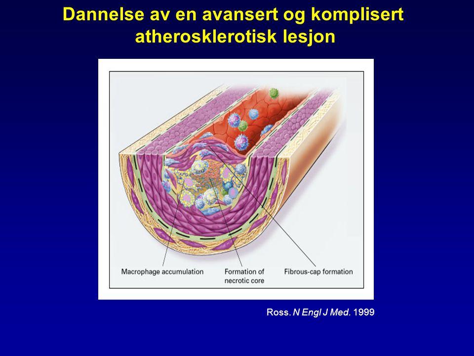 Dannelse av en avansert og komplisert atherosklerotisk lesjon