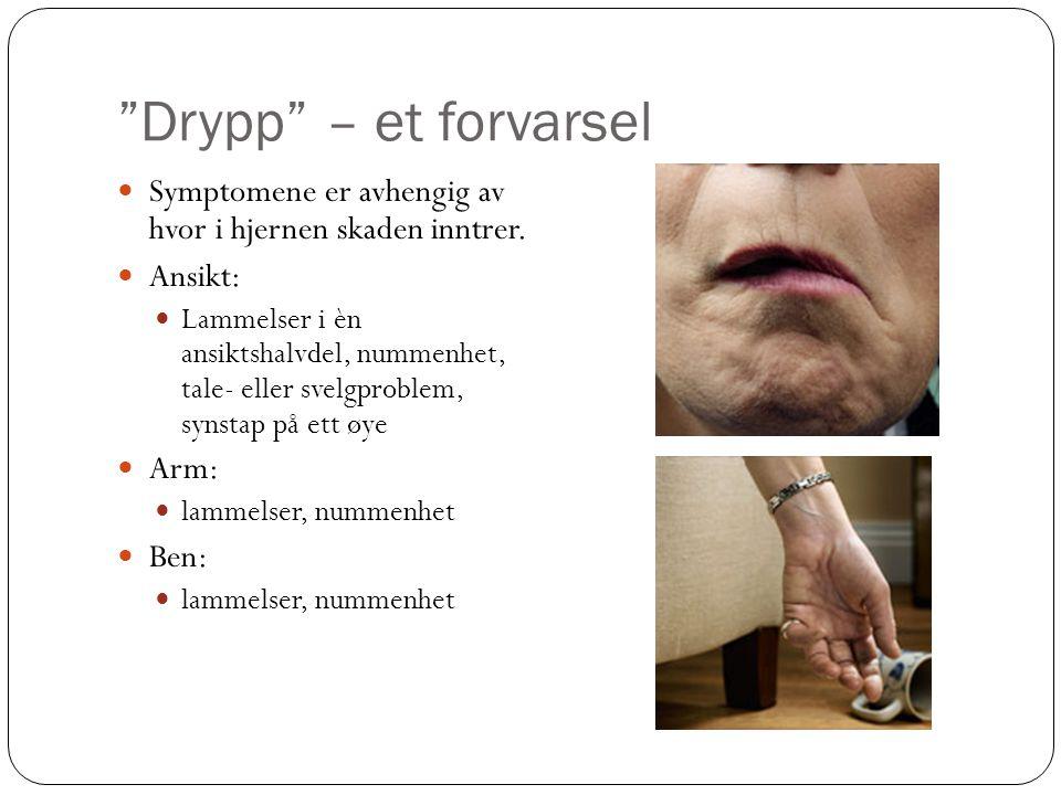 Drypp – et forvarsel Symptomene er avhengig av hvor i hjernen skaden inntrer. Ansikt: