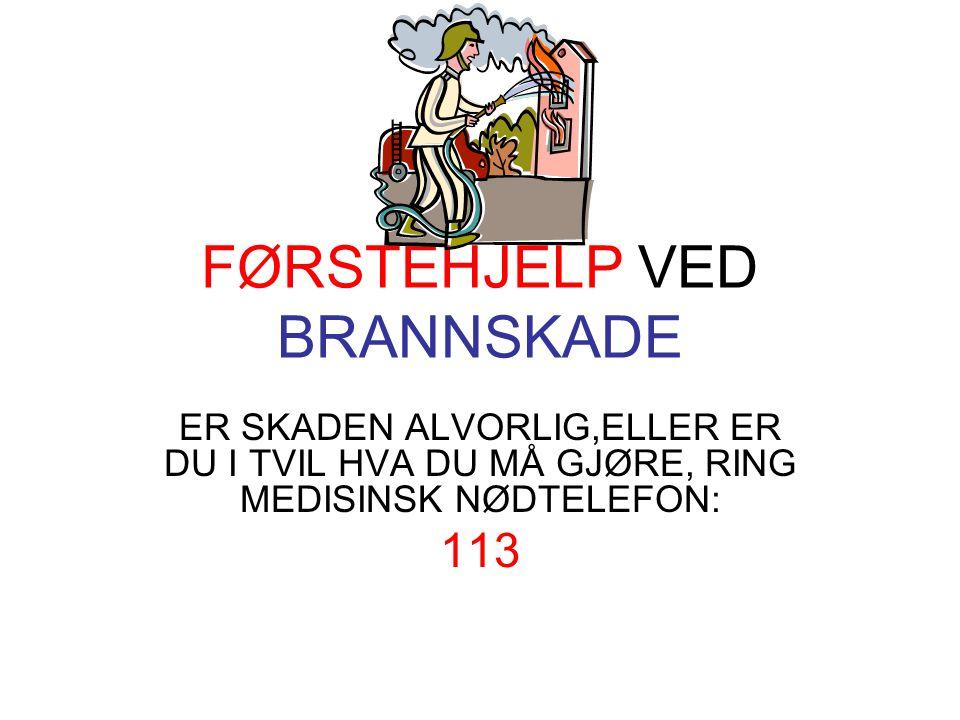 FØRSTEHJELP VED BRANNSKADE
