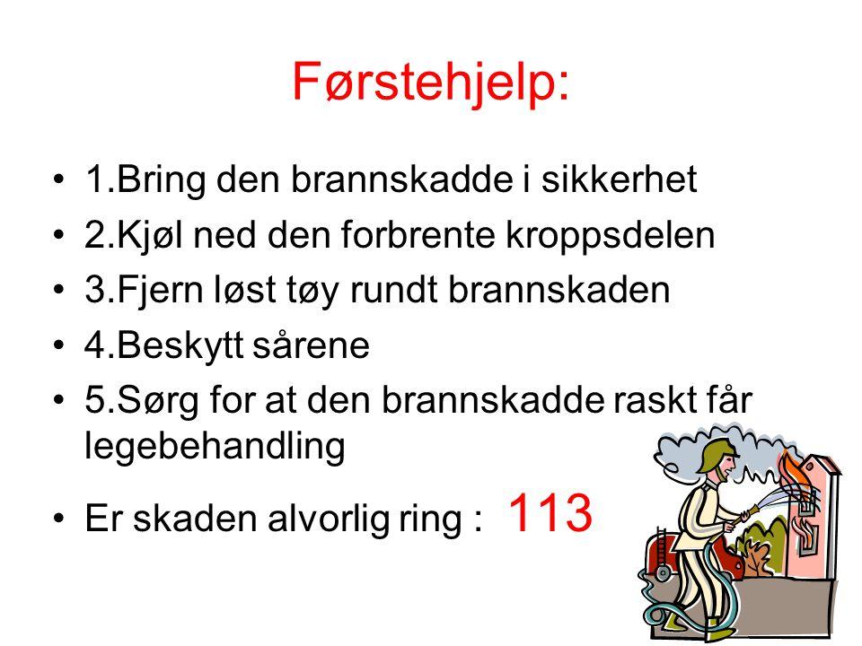 Førstehjelp: 1.Bring den brannskadde i sikkerhet