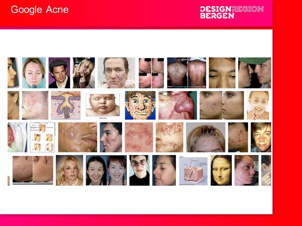 Google Acne