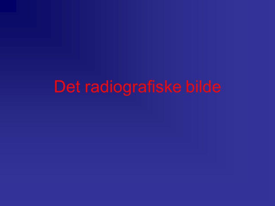 Det radiografiske bilde