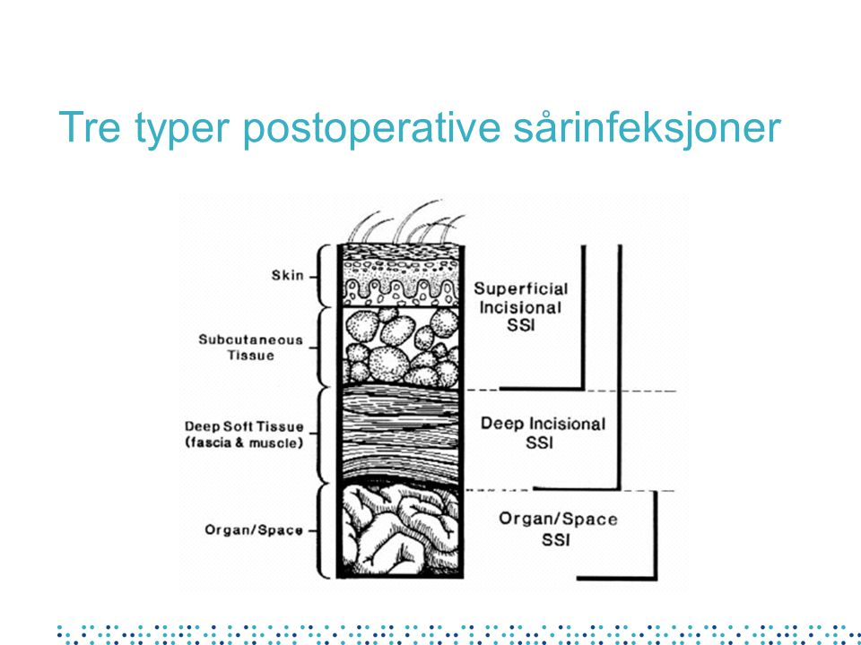 Tre typer postoperative sårinfeksjoner
