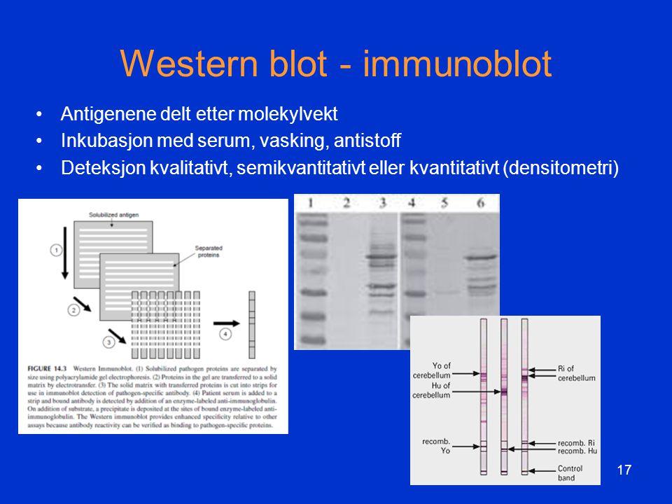 Western blot - immunoblot