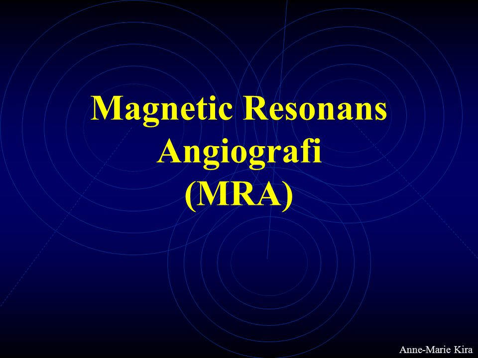 Magnetic Resonans Angiografi (MRA)