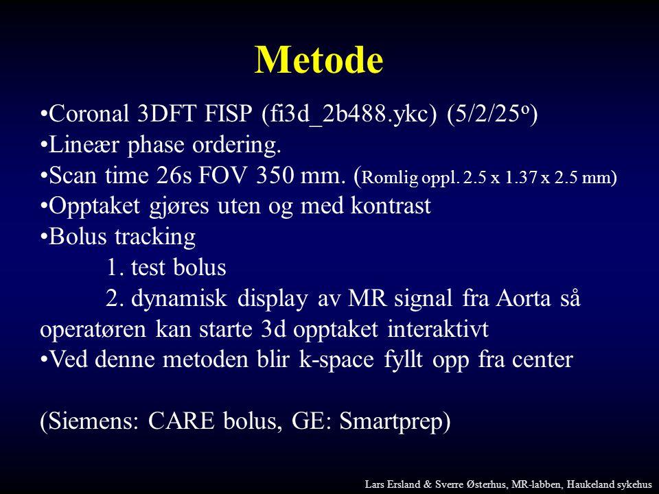 Metode Coronal 3DFT FISP (fi3d_2b488.ykc) (5/2/25o)