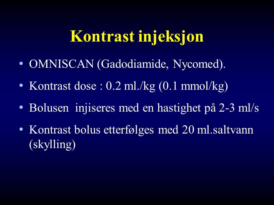 Kontrast injeksjon OMNISCAN (Gadodiamide, Nycomed).