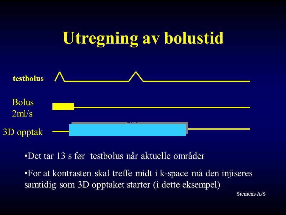 Utregning av bolustid Bolus 2ml/s 3D opptak