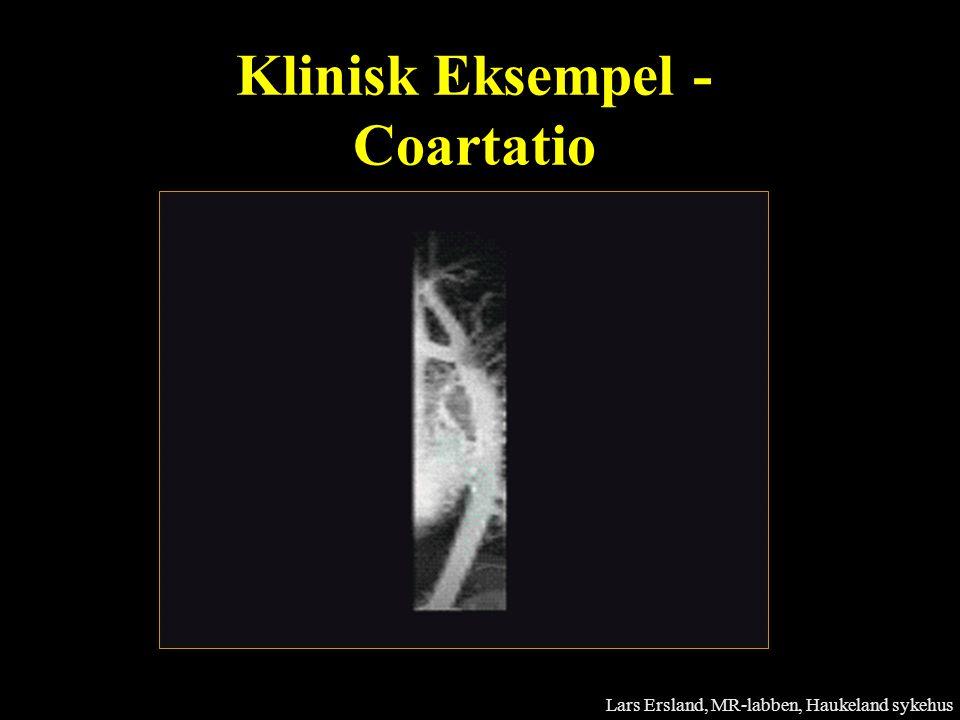 Klinisk Eksempel - Coartatio
