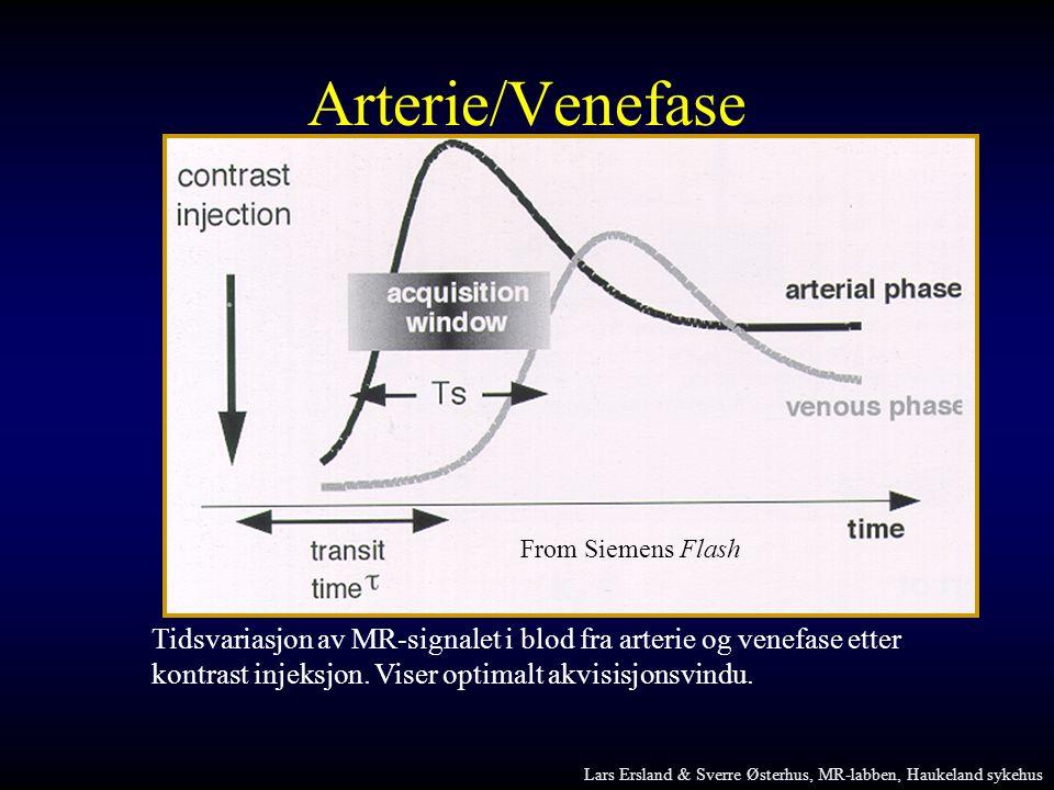 Arterie/Venefase From Siemens Flash. Tidsvariasjon av MR-signalet i blod fra arterie og venefase etter.