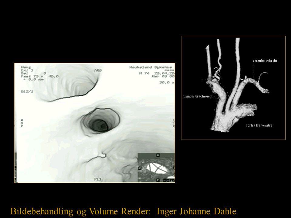 Bildebehandling og Volume Render: Inger Johanne Dahle