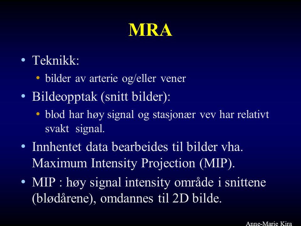 MRA Teknikk: Bildeopptak (snitt bilder):