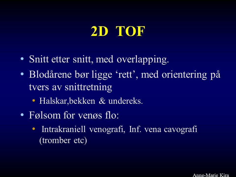 2D TOF Snitt etter snitt, med overlapping.