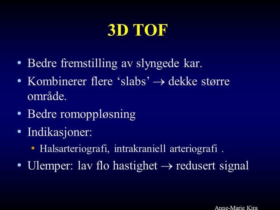 3D TOF Bedre fremstilling av slyngede kar.