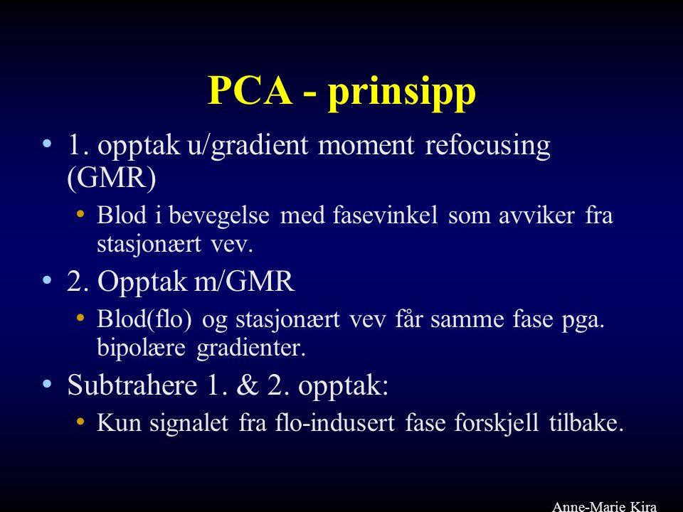 PCA - prinsipp 1. opptak u/gradient moment refocusing (GMR)