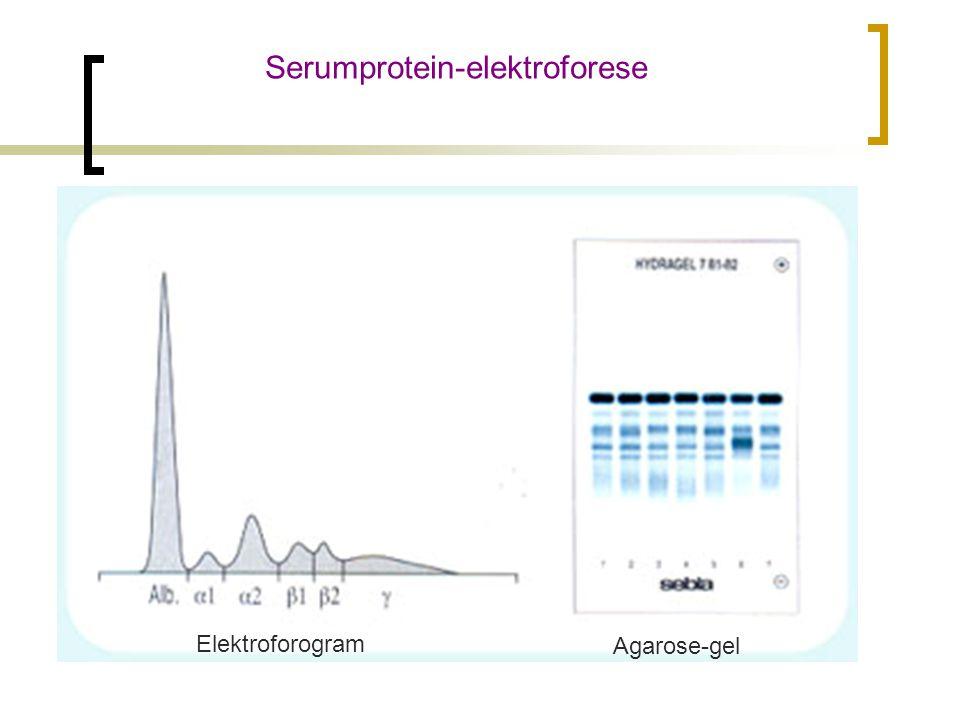 Serumprotein-elektroforese