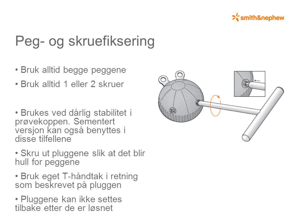 Peg- og skruefiksering
