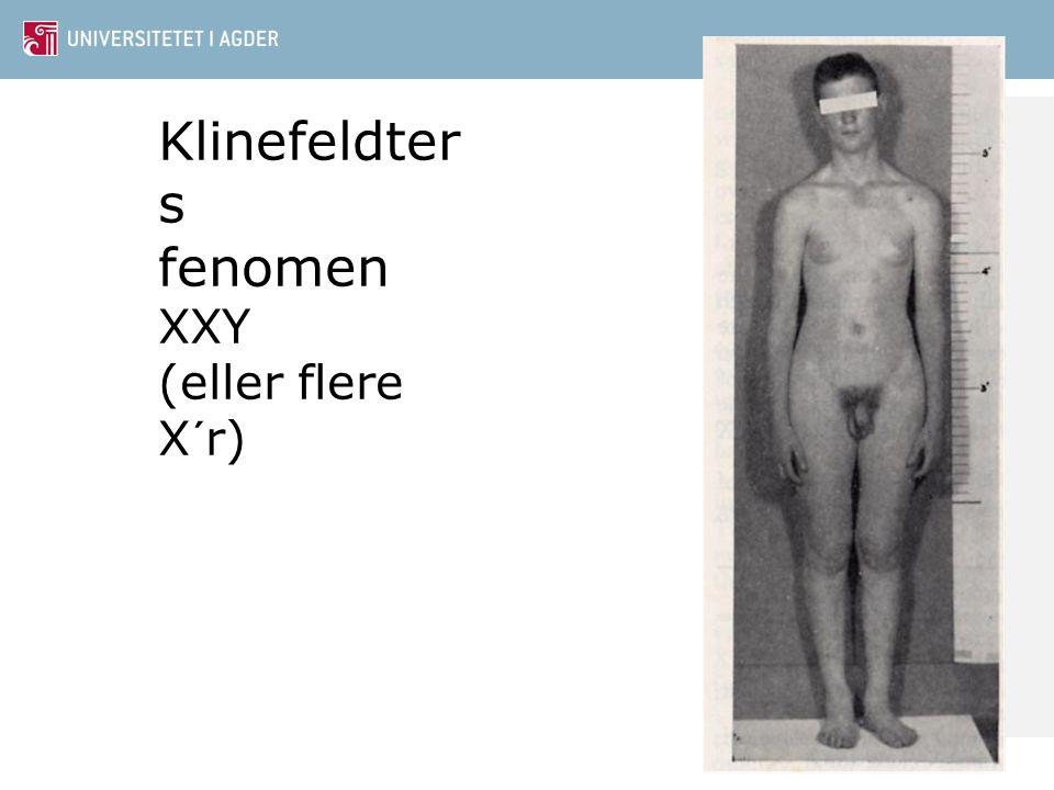 Klinefeldters fenomen XXY (eller flere X´r)