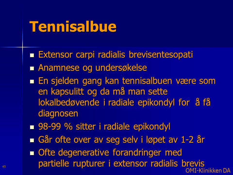 Tennisalbue Extensor carpi radialis brevisentesopati