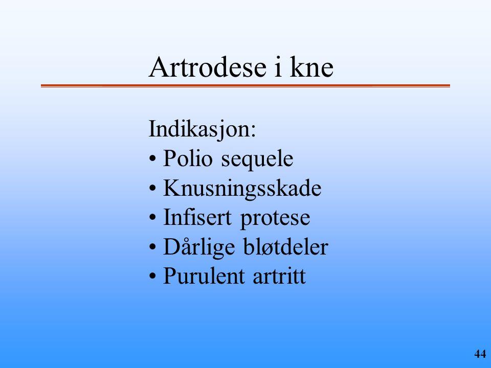 Artrodese i kne Indikasjon: Polio sequele Knusningsskade