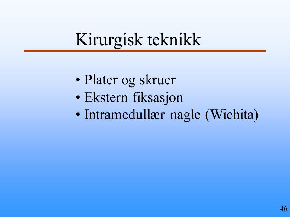 Kirurgisk teknikk Plater og skruer Ekstern fiksasjon