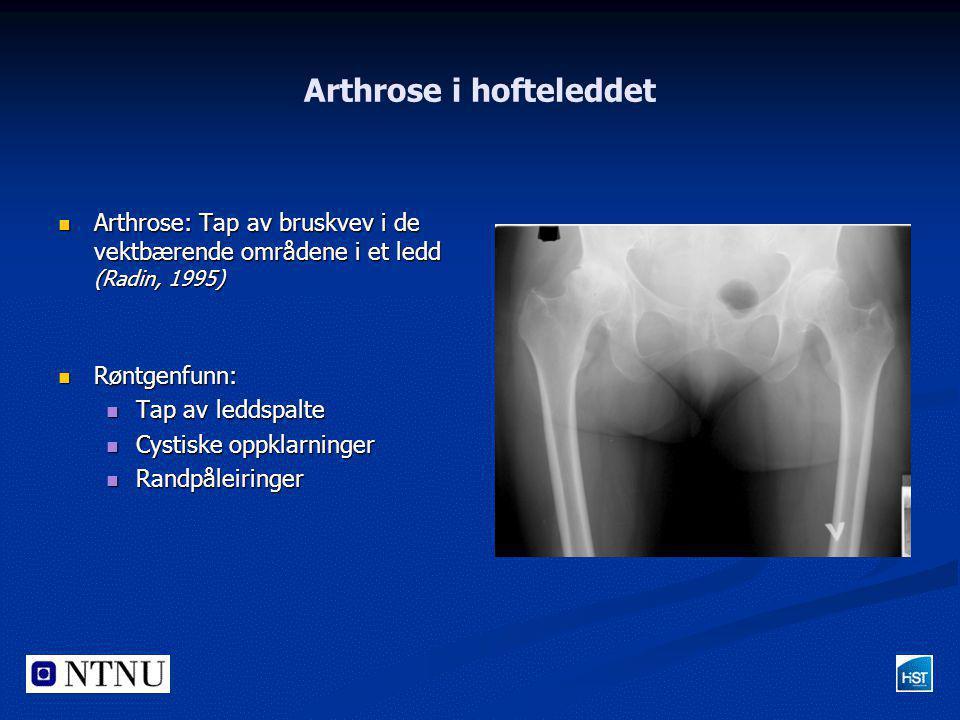 Arthrose i hofteleddet