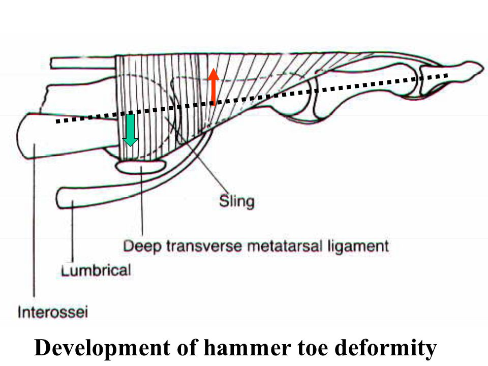 Development of hammer toe deformity