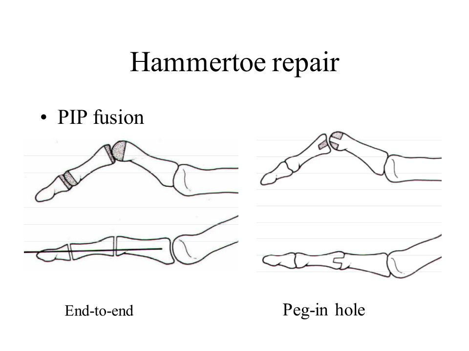Hammertoe repair PIP fusion End-to-end Peg-in hole