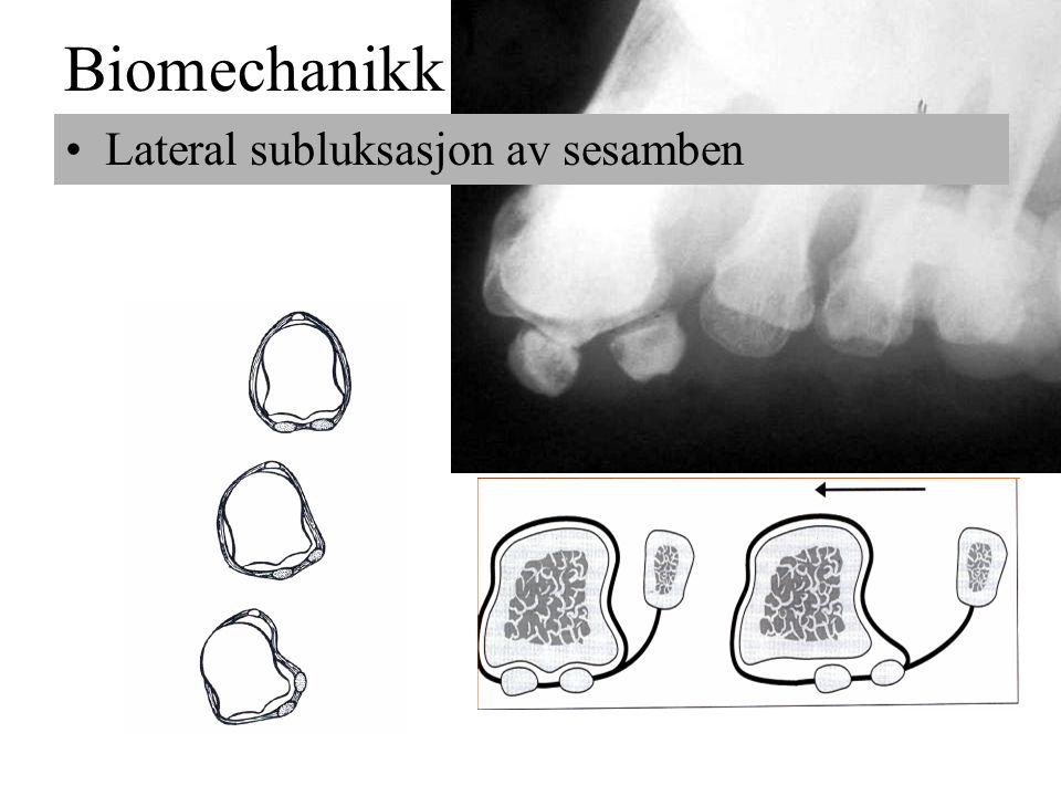 Biomechanikk Lateral subluksasjon av sesamben