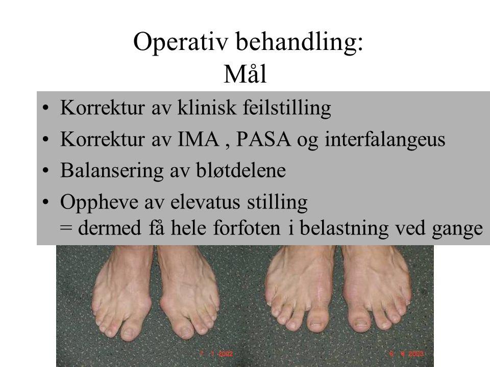 Operativ behandling: Mål