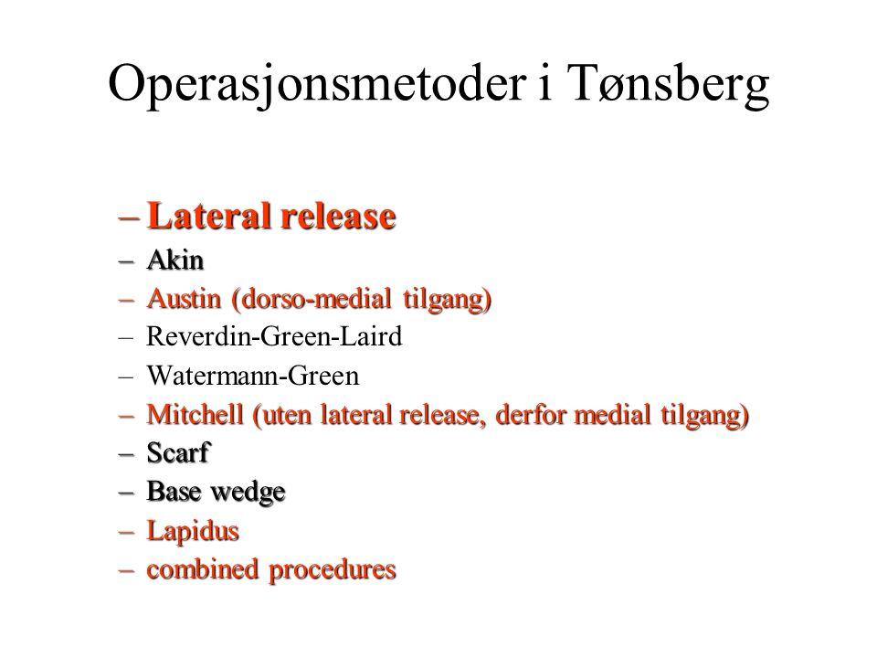 Operasjonsmetoder i Tønsberg