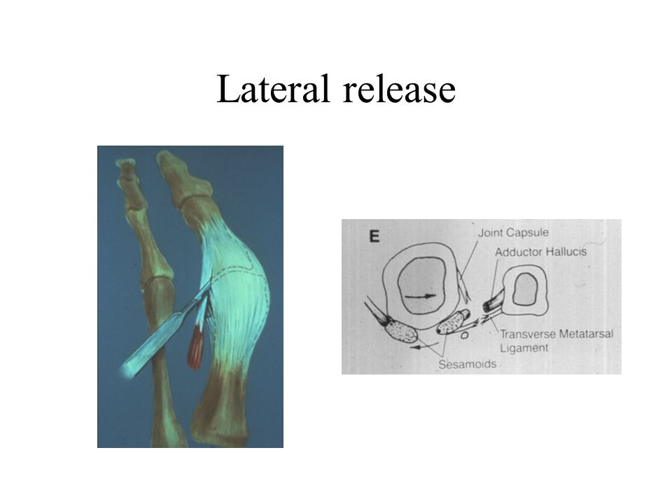 Lateral release