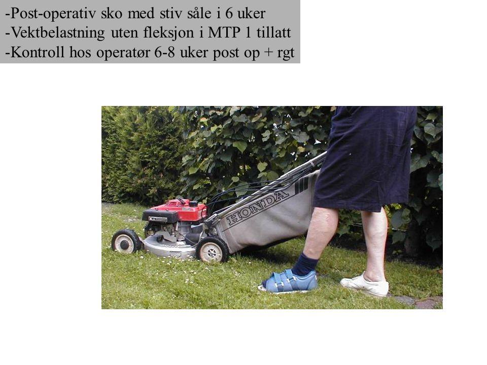 Post-operativ sko med stiv såle i 6 uker