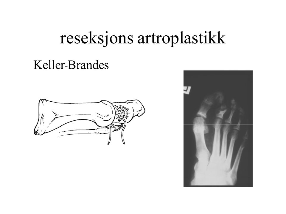 reseksjons artroplastikk