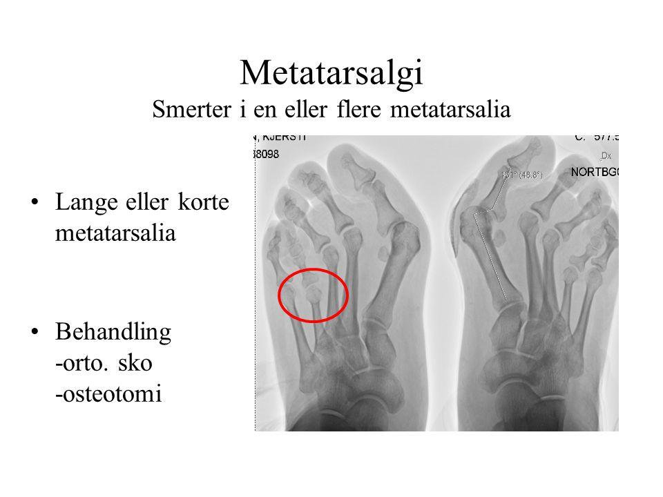 Metatarsalgi Smerter i en eller flere metatarsalia