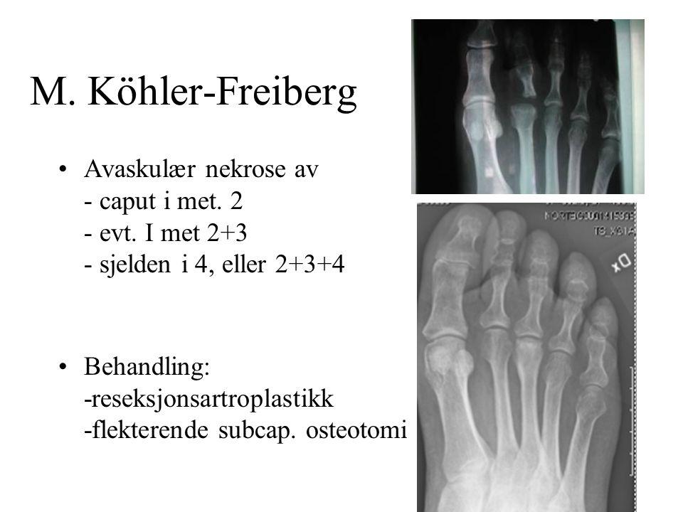 M. Köhler-Freiberg Avaskulær nekrose av - caput i met. 2 - evt. I met 2+3 - sjelden i 4, eller 2+3+4.