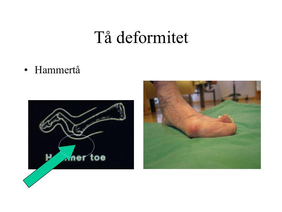 Tå deformitet Hammertå