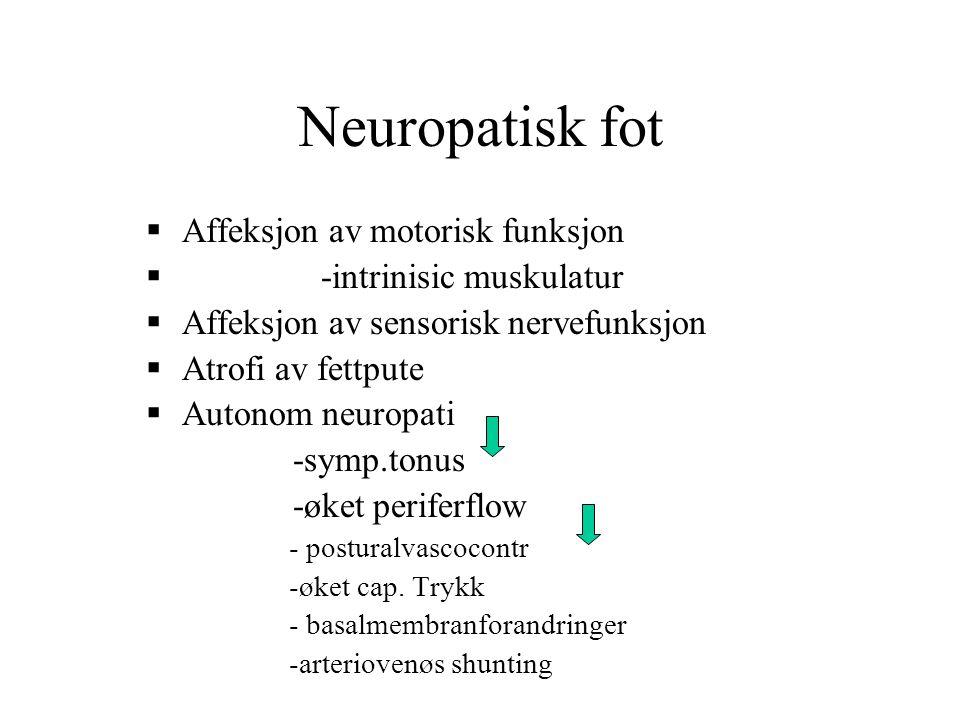 Neuropatisk fot Affeksjon av motorisk funksjon -intrinisic muskulatur