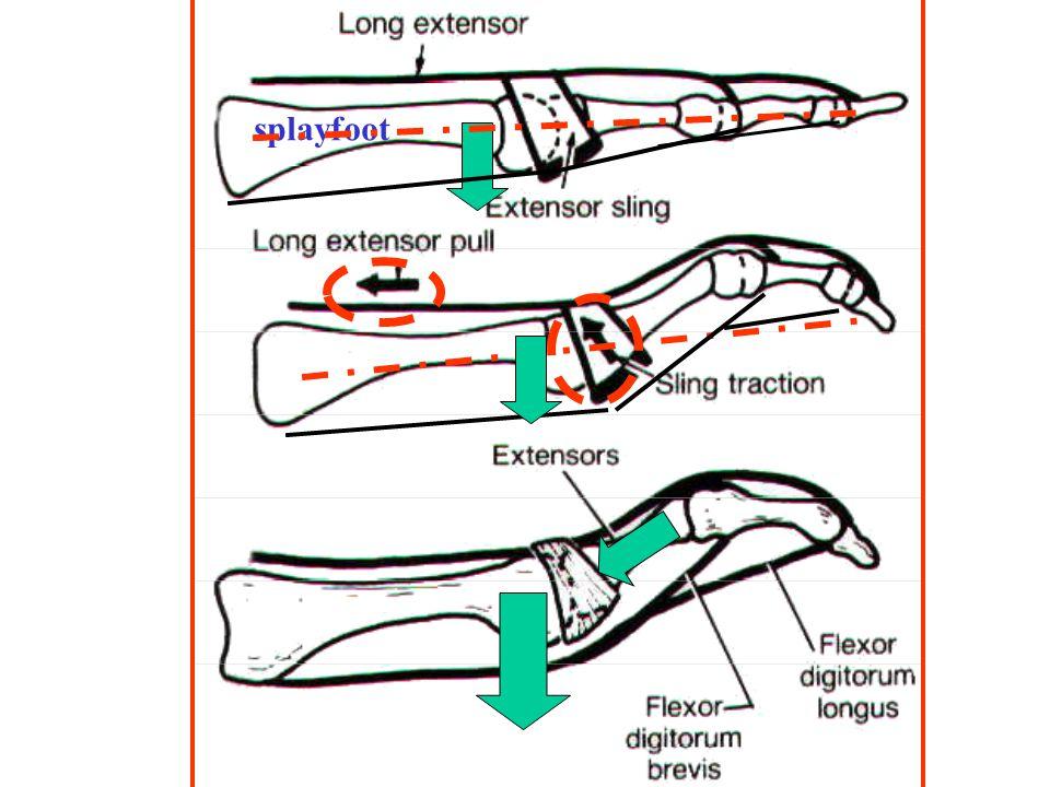 Entstehung der Hammerzehe splayfoot