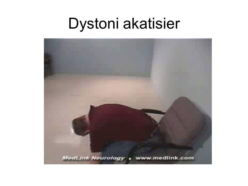 Dystoni akatisier